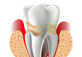 是牙齒痛嗎?