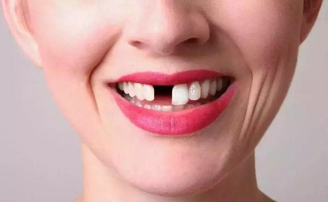 缺牙不補的五大危害