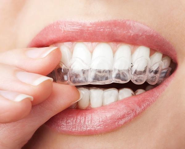 防蛀牙 醫師:最好只吃三餐