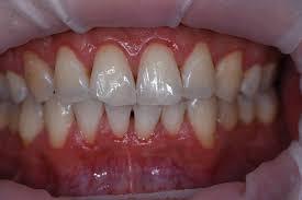 牙齒堅固不壞 古中醫保養原則