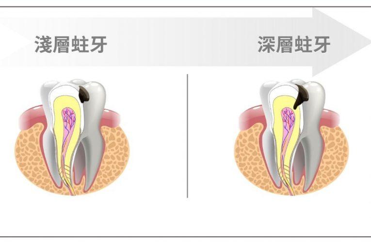 什麼是蛀牙?